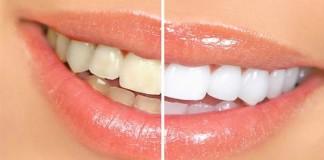 Сделать зубки белее