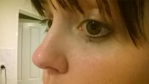 Черные точки на носу – как от них избавиться?