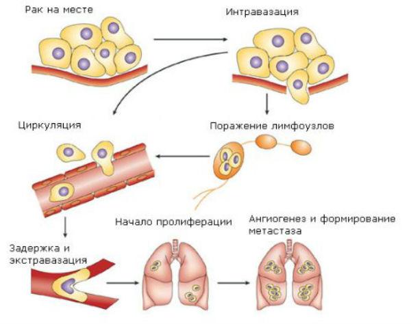 Причины заболевания раком и появления метастазов