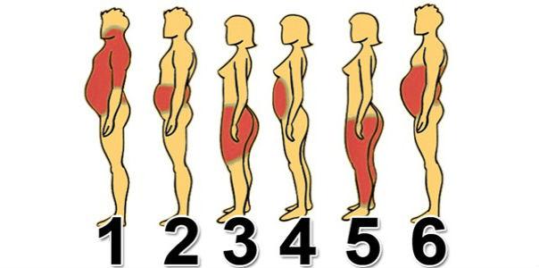 6 типов ожирения, и как справиться с каждым из них