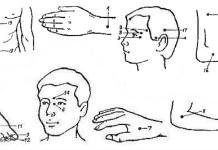 Аккупунктура при лечении мигрени