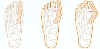 Косточки на ногах - беда для человека