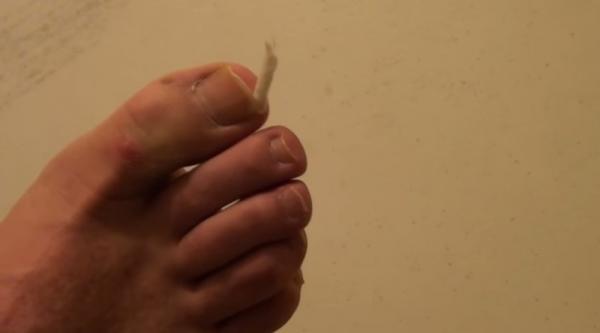 Легкое избавление от врастания ногтей