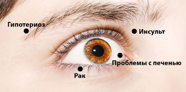 Глаза о проблемах со здоровьем