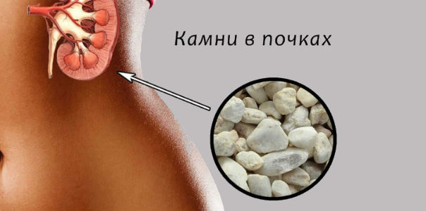 Камни в почках и желчном пузыре