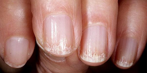 Причины ломкости ногтей и народные методы их укрепления