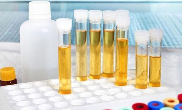 Повышение лейкоцитов в моче