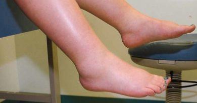 ТОП-5 способов попрощаться с отеками ног